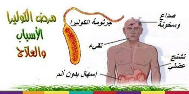 بالصور اعراض مرض الكوليرا , كيف تتعرف على اصابتك بمرض الكوليرا 5920 1