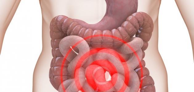 صورة اعراض القولون العصبي , ماهى اعراض القولون العصبى