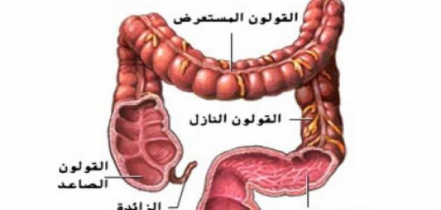 صورة مرض القولون , اعراض مرض القولون