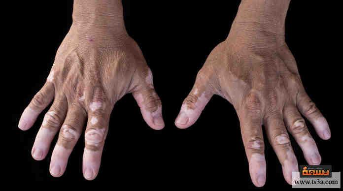 بالصور علاج البهاق بالاعشاب , شاهد افضل طريقة لعلاج البهاق بالاعشاب 4741 1