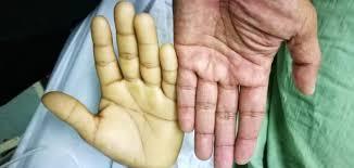 صوره اعراض فقر الدم , الاعراض بسبب فقر الدم