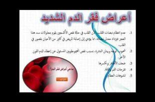 بالصور اعراض فقر الدم , الاعراض بسبب فقر الدم 5722 3 310x205