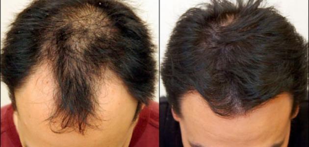 صوره علاج تساقط الشعر للرجال , كيفية ايقاف تساقط الشعر للرجال