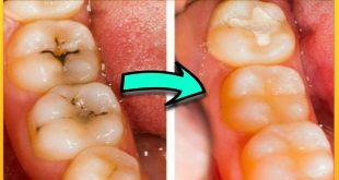 صورة علاج تسوس الاسنان , تخلص من التسوس اليوم