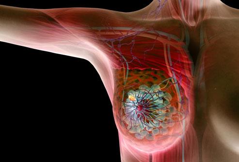 صور مرض سرطان الثدي , اهم اعراض سرطان الثدي
