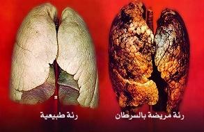 صوره اعراض سرطان الرئة , الاعراض التي تظهر على مريض سرطان الرئة
