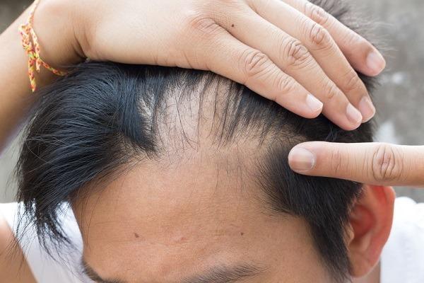 صور علاج تساقط الشعر , طريقة علاج تساقط الشعر في المنزل