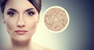 صور تقشير البشرة الدهنية , فوائد وطرق تقشير البشرة الدهنية