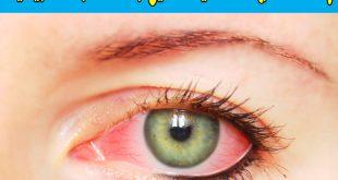 صور علاج حساسية العين , افضل علاج لحساسيه العين