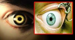 صور اعراض العين والحسد , اعرف اذا كنت محسود