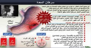 صورة اعراض سرطان المعدة , اكتشف اعراض سرطان المعده