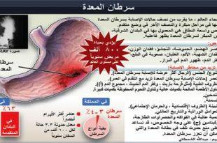 صوره اعراض سرطان المعدة , اكتشف اعراض سرطان المعده