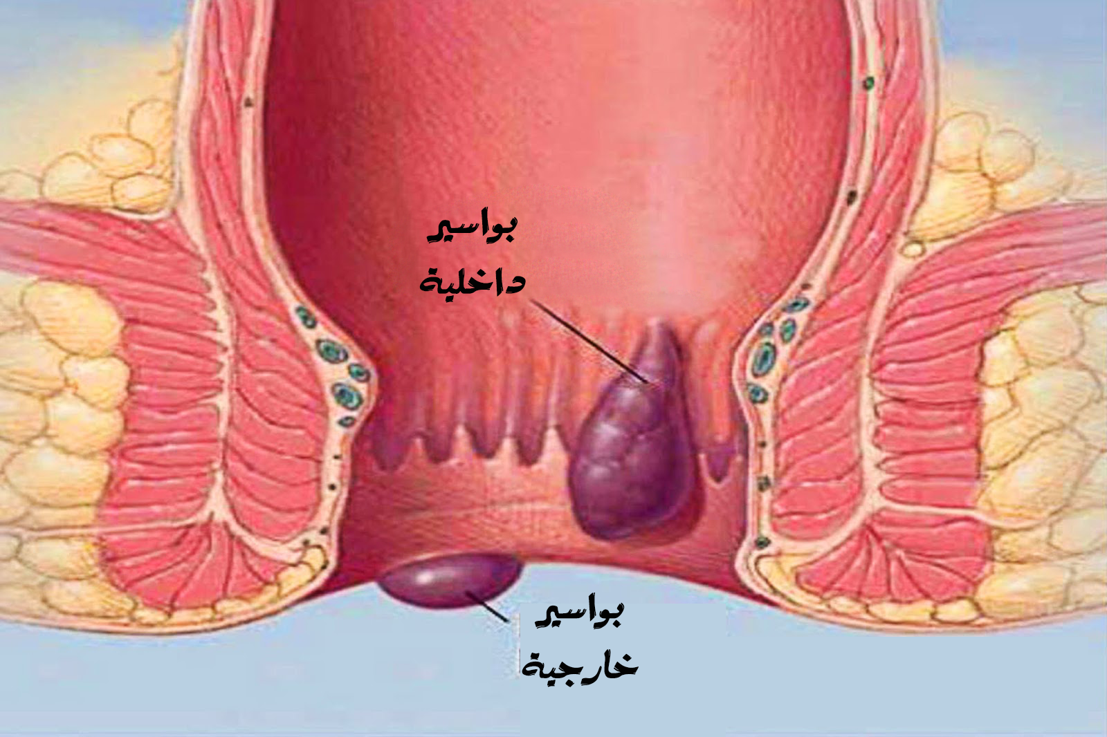 بالصور مرض البواسير , معلومات سريعة عن الوقاية من مرض البواسير وطرق علاجه 2957