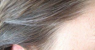 صوره علاج الشيب المبكر , تخلصي من الشعر الابيض نهائيا بحلول طبيعية بدون صبغات