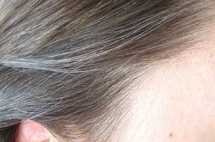 بالصور علاج الشيب المبكر , تخلصي من الشعر الابيض نهائيا بحلول طبيعية بدون صبغات 3202 3 310x205