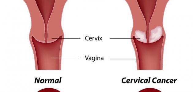 صور اعراض سرطان الرحم , ظواهر مرض ورم الرحم