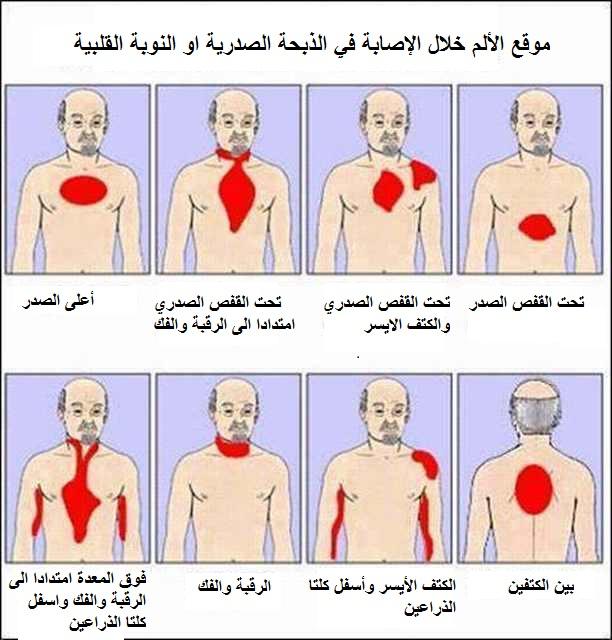 صورة اعراض الذبحة الصدرية , تعرف على اعراض الذبحة وكيفية العلاج
