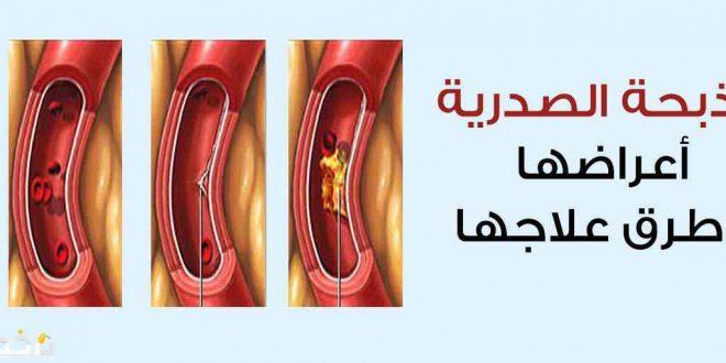 صور اعراض الذبحة الصدرية , تعرف على اعراض الذبحة وكيفية العلاج