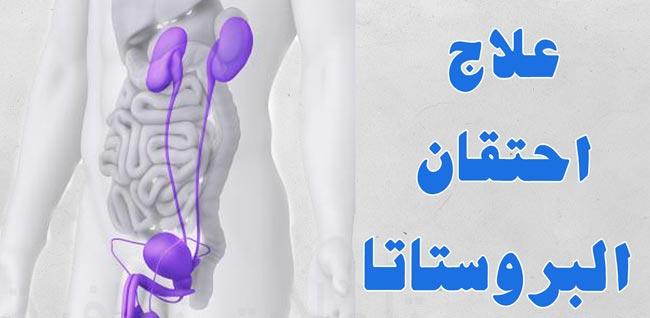 صورة اعراض البروستاتا , ماالاوجاع الذي تشير الي مرض البروستاتا