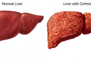 بالصور علاج تليف الكبد , ماالاشياء التي تساعد علي علاج تليف الكبد 6494 1 310x205