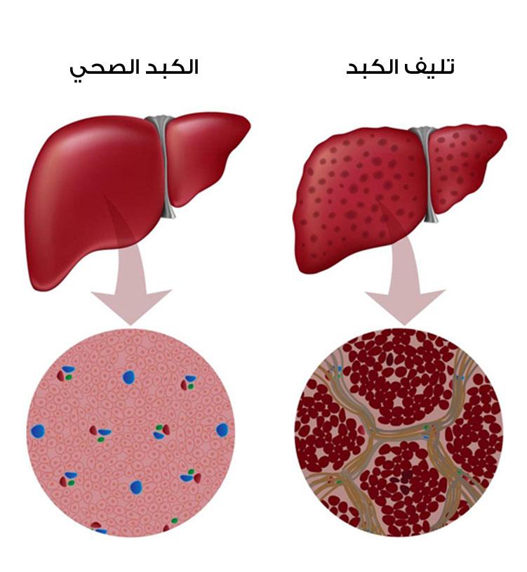 صور علاج تليف الكبد , ماالاشياء التي تساعد علي علاج تليف الكبد