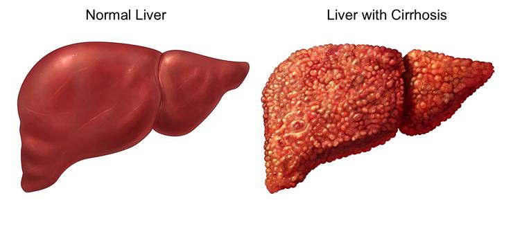 صوره علاج تليف الكبد , ماالاشياء التي تساعد علي علاج تليف الكبد