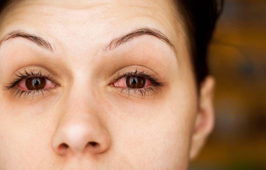 صورة العين الحمراء , اسباب وعلاج العين الحمراء