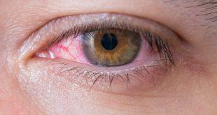 صور العين الحمراء , اسباب وعلاج العين الحمراء