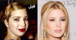 صوره صور بنت ترامب , صور بنت ترامب قبل وبعد عمليات التجميل