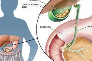 صوره اعراض المرارة , اعراض التهاب المرارة وكيفية علاجها