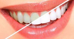 صورة خلطات تبيض الاسنان , ابتسامتك اجمل مع وصفات تجعل اسنانك كاللؤلؤ في ثلاثة ايام