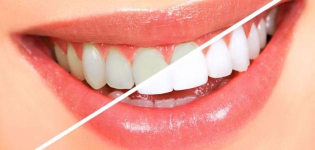 صوره خلطات تبيض الاسنان , ابتسامتك اجمل مع وصفات تجعل اسنانك كاللؤلؤ في ثلاثة ايام