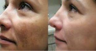 صور توحيد لون البشرة , احصلي على بشرة صافية بدون تصبغات باسهل الوصفات