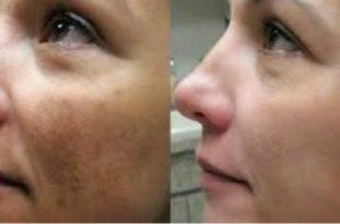 صورة توحيد لون البشرة , احصلي على بشرة صافية بدون تصبغات باسهل الوصفات