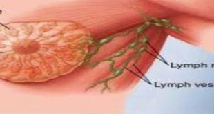 صور سرطان الثدي بالصور الحقيقية , خطورة سرطان الثدى