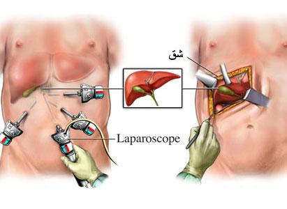 صورة علاج ورم الكبد , مدى خطورة سرطان الكبد