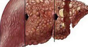 صور علاج ورم الكبد , مدى خطورة سرطان الكبد