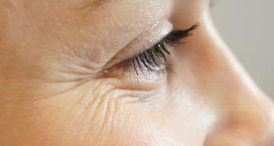 صور التخلص من تجاعيد العين , اسهل الطرق للحصول على بشرة صافية