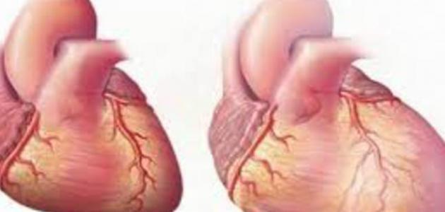صورة ما هو تضخم القلب , اعراض مرض تضخم القلب