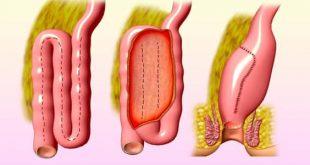 صورة علاج التهاب القولون , الم القولون لا مثيل له