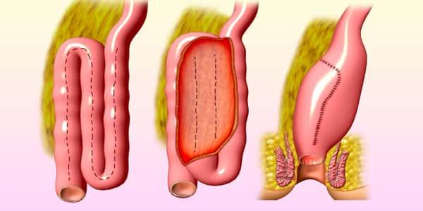 صور علاج التهاب القولون , الم القولون لا مثيل له