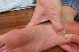 صورة اسباب حكة الرجلين , اريد التخلص من التهاب الجلد فى الرجلين