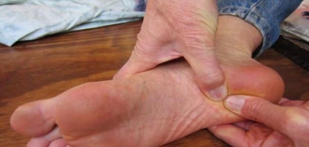 صور اسباب حكة الرجلين , اريد التخلص من التهاب الجلد فى الرجلين