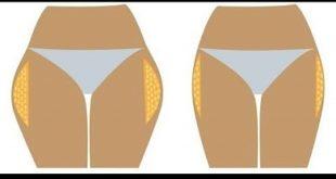 صور طريقة ازالة غمازات الارداف , اريد التخلص من العضلة النائمة