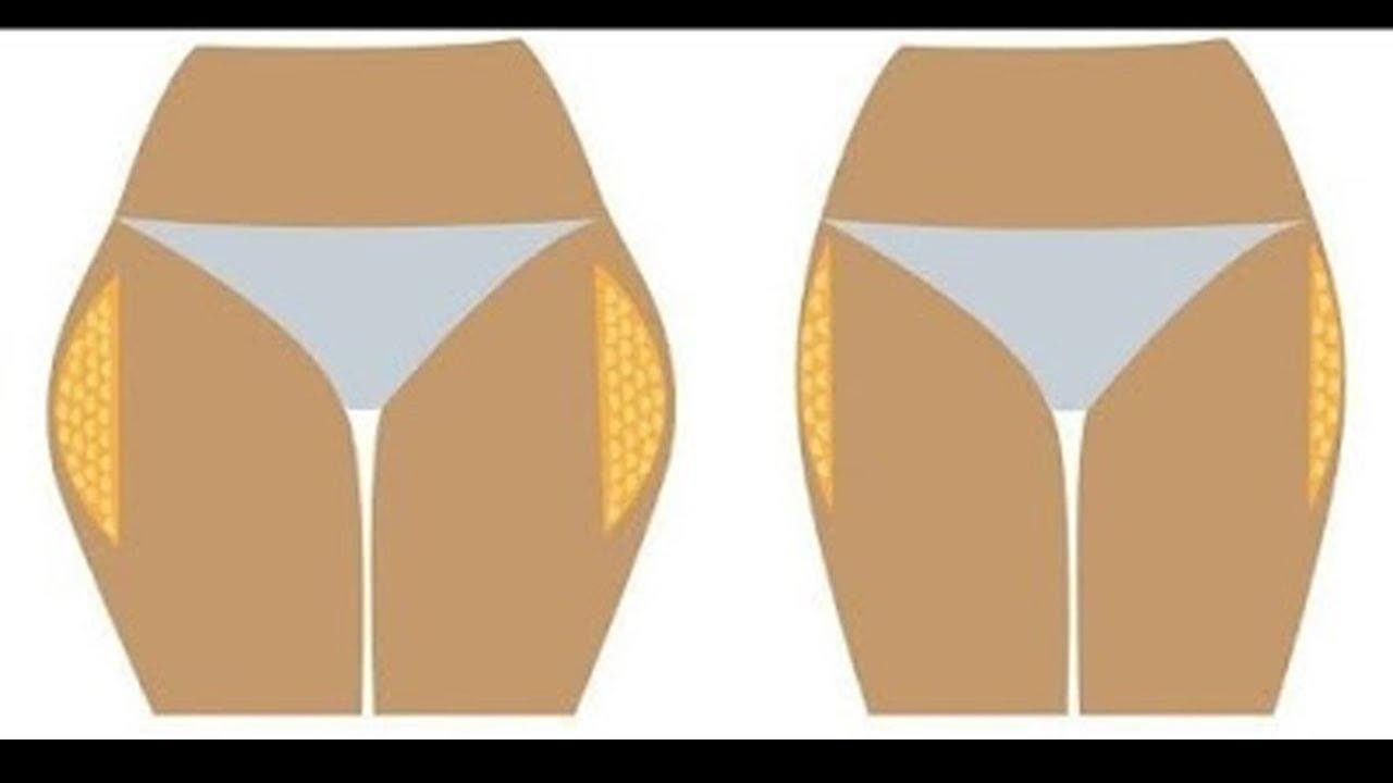 صورة طريقة ازالة غمازات الارداف , اريد التخلص من العضلة النائمة