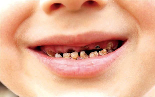 صور صورة اسنان مسوسة , اسباب تسوس الاسنان وكيفية الوقاية منه